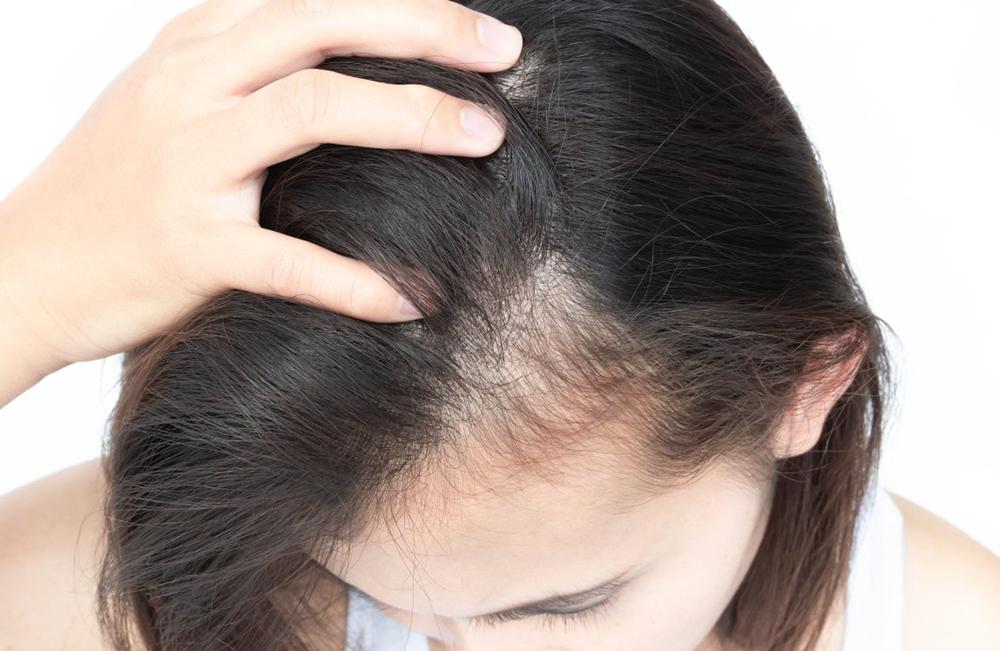guide greffe cheveux